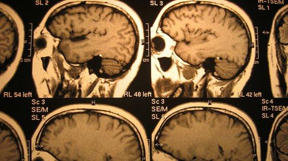 Mózg rośnie najszybciej w ciągu pierwszych trzech miesięcy życia