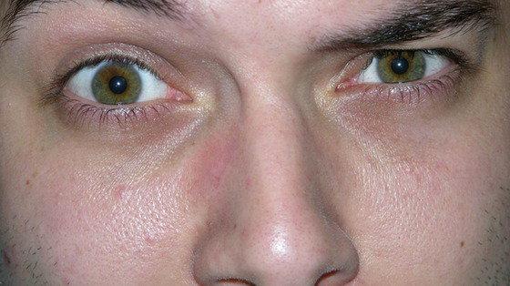 Ładny albo brzydki zapach: to nasz nos decyduje