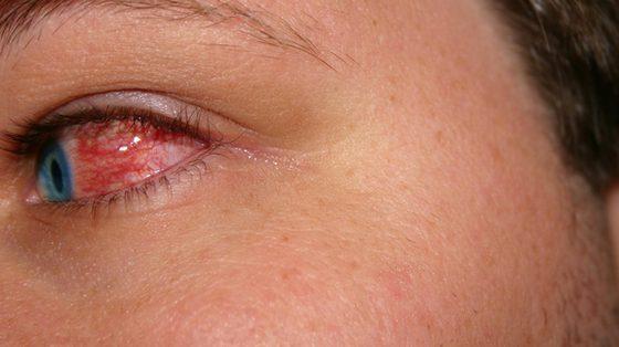 Lek do przemywania oczu pomoże uniknąć objawów wirusowego zapalenia spojówek