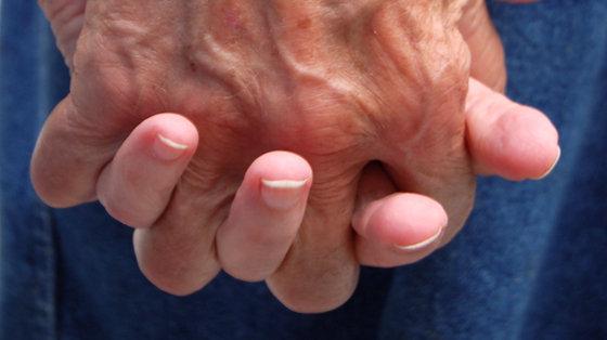 Jak zmienia się nasze ciało wraz ze starzeniem się?
