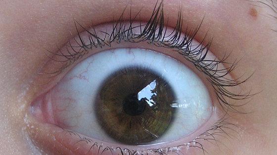 Podwójne widzenie - przyczyny, objawy, leczenie