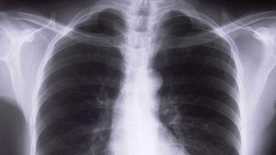 Rak płuc: nowy test oddechowy