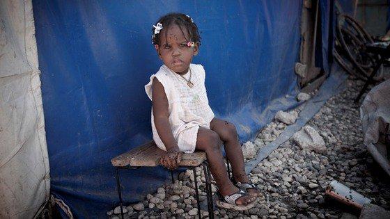Cholera: Czy jest śmiertelna? Ostatnie epidemie cholery
