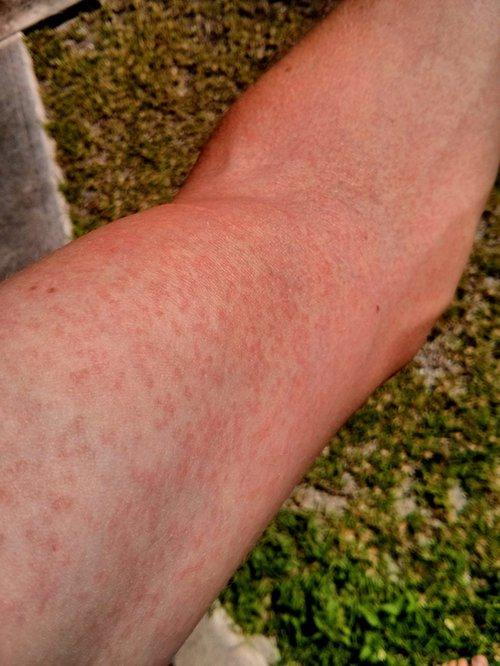 Wysypka na ramieniu spowodowana wirusem Zika