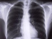 Układu oddechowego